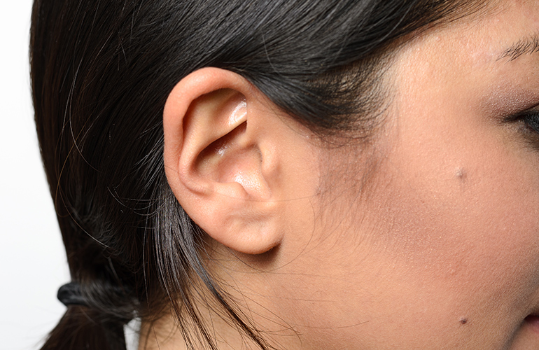 Pungent ears