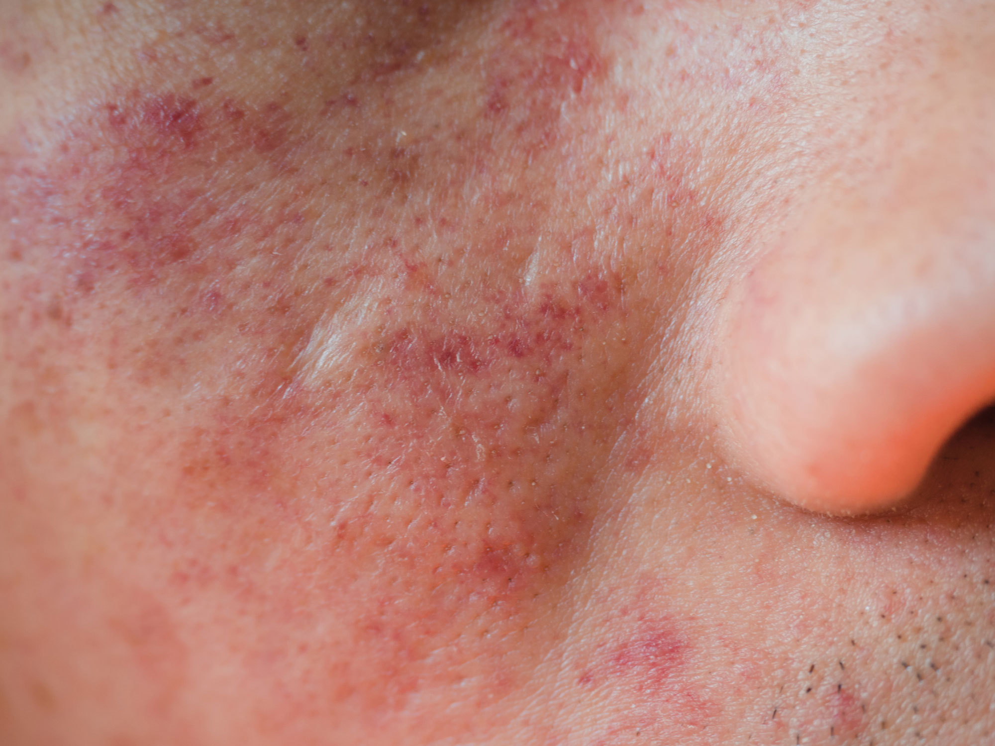 Rashes and blotches