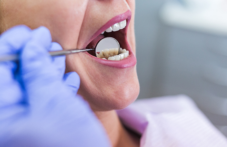 Avoiding regular visits to the dentist